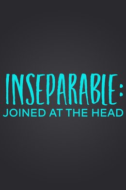 Inseparable: Joined at the Head